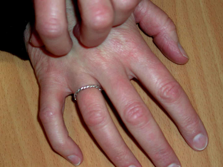 Fnat symptomer på Fnat behandling